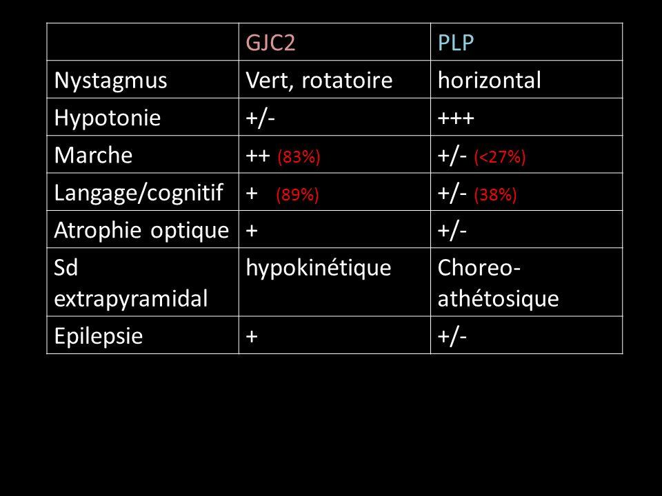 GJC2PLP NystagmusVert, rotatoirehorizontal Hypotonie+/-+++ Marche++ (83%) +/- (<27%) Langage/cognitif+ (89%) +/- (38%) Atrophie optique++/- Sd extrapyramidal hypokinétiqueChoreo- athétosique Epilepsie++/-