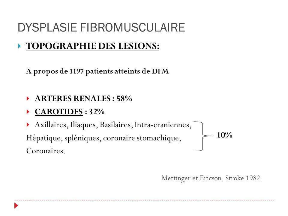 DYSPLASIE FIBROMUSCULAIRE TOPOGRAPHIE DES LESIONS: A propos de 1197 patients atteints de DFM ARTERES RENALES : 58% CAROTIDES : 32% Axillaires, Iliaques, Basilaires, Intra-craniennes, Hépatique, spléniques, coronaire stomachique, Coronaires.