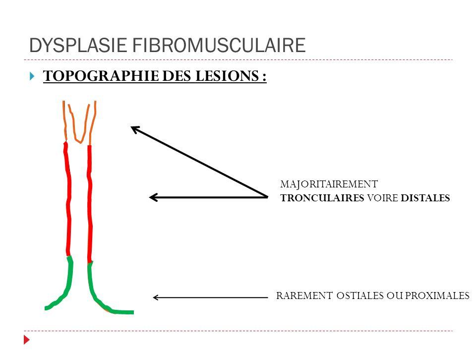DYSPLASIE FIBROMUSCULAIRE TOPOGRAPHIE DES LESIONS : RAREMENT OSTIALES OU PROXIMALES MAJORITAIREMENT TRONCULAIRES VOIRE DISTALES
