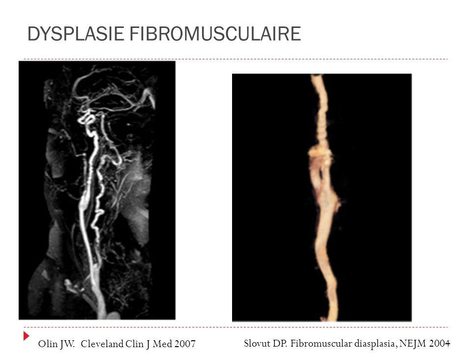 DYSPLASIE FIBROMUSCULAIRE Slovut DP. Fibromuscular diasplasia, NEJM 2004 Olin JW. Cleveland Clin J Med 2007