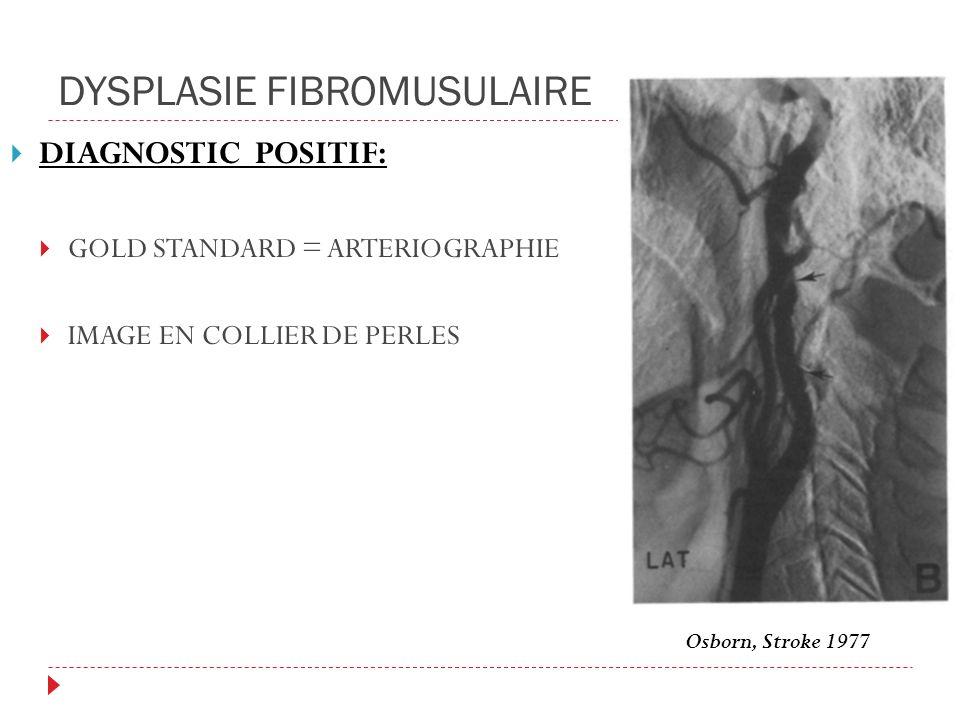 DYSPLASIE FIBROMUSULAIRE DIAGNOSTIC POSITIF: GOLD STANDARD = ARTERIOGRAPHIE IMAGE EN COLLIER DE PERLES Osborn, Stroke 1977