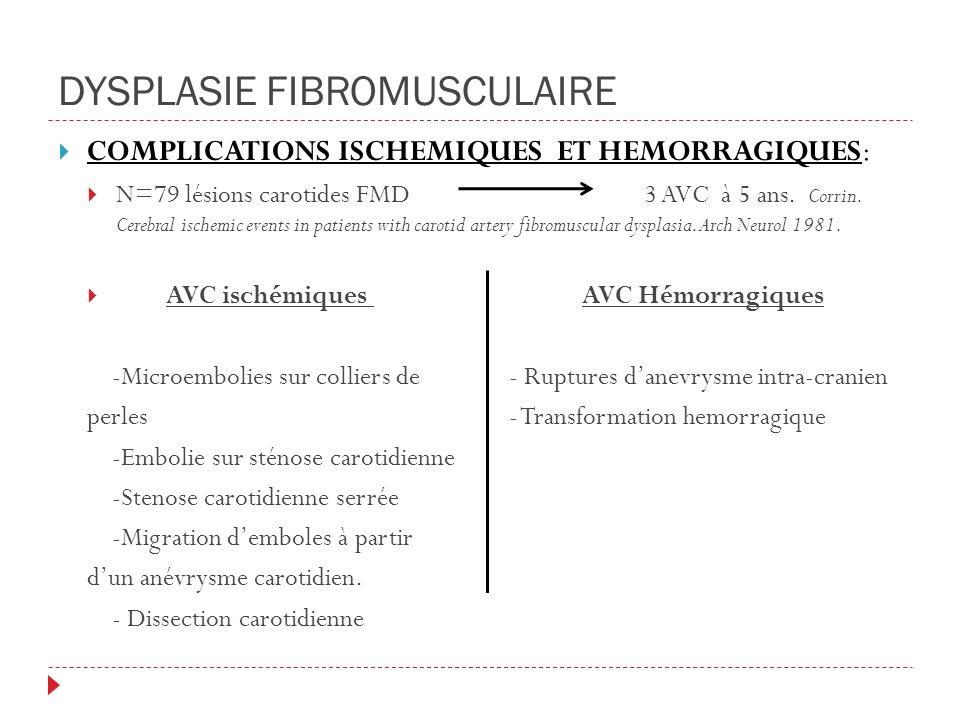DYSPLASIE FIBROMUSCULAIRE COMPLICATIONS ISCHEMIQUES ET HEMORRAGIQUES: N=79 lésions carotides FMD 3 AVC à 5 ans.