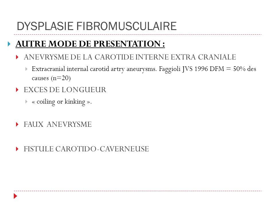 DYSPLASIE FIBROMUSCULAIRE AUTRE MODE DE PRESENTATION : ANEVRYSME DE LA CAROTIDE INTERNE EXTRA CRANIALE Extracranial internal carotid artry aneurysms.
