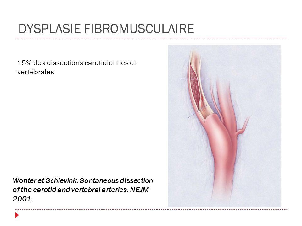 DYSPLASIE FIBROMUSCULAIRE 15% des dissections carotidiennes et vertébrales Wonter et Schievink. Sontaneous dissection of the carotid and vertebral art