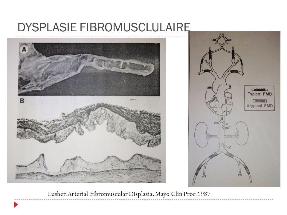DYSPLASIE FIBROMUSCLULAIRE Lusher. Arterial Fibromuscular Displasia. Mayo Clin Proc 1987
