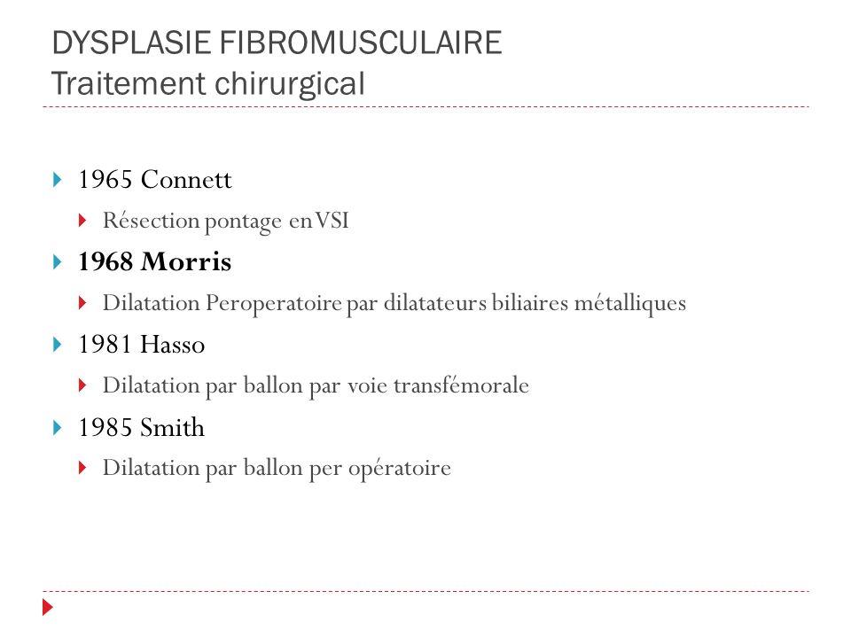 DYSPLASIE FIBROMUSCULAIRE Traitement chirurgical 1965 Connett Résection pontage en VSI 1968 Morris Dilatation Peroperatoire par dilatateurs biliaires
