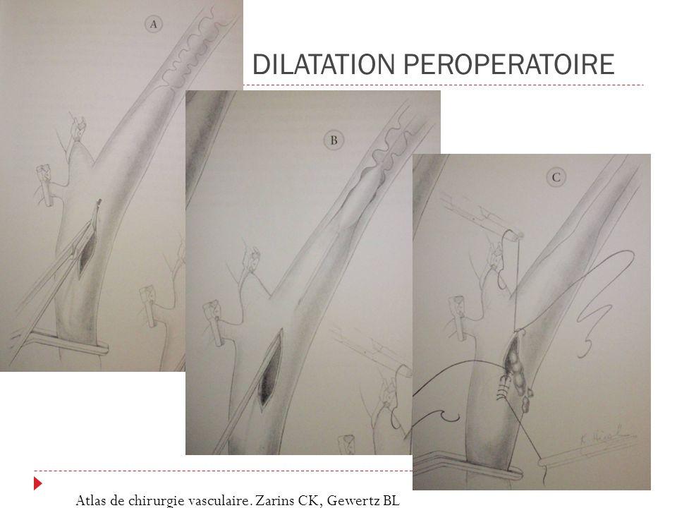 DILATATION PEROPERATOIRE Atlas de chirurgie vasculaire. Zarins CK, Gewertz BL