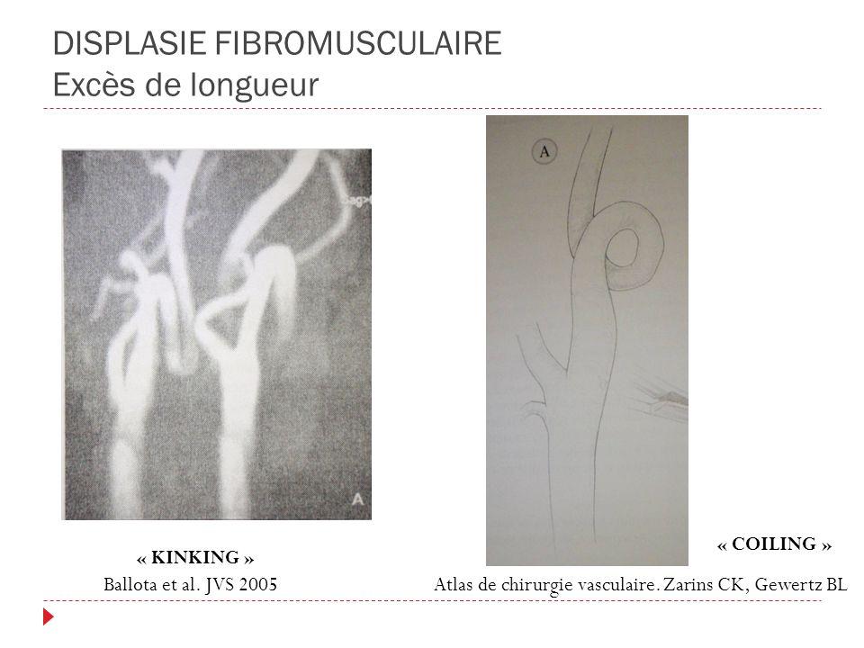 DISPLASIE FIBROMUSCULAIRE Excès de longueur « KINKING » « COILING » Ballota et al. JVS 2005Atlas de chirurgie vasculaire. Zarins CK, Gewertz BL