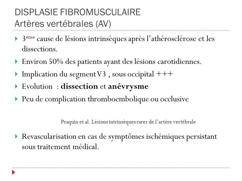 DISPLASIE FIBROMUSCULAIRE Artères vertébrales (AV) 3 ème cause de lésions intrinsèques après lathérosclérose et les dissections. Environ 50% des patie