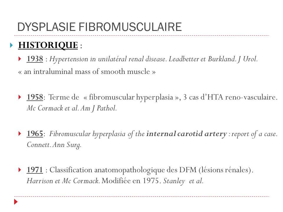 DYSPLASIE FIBROMUSCULAIRE HISTORIQUE : 1938 : Hypertension in unilatéral renal disease.