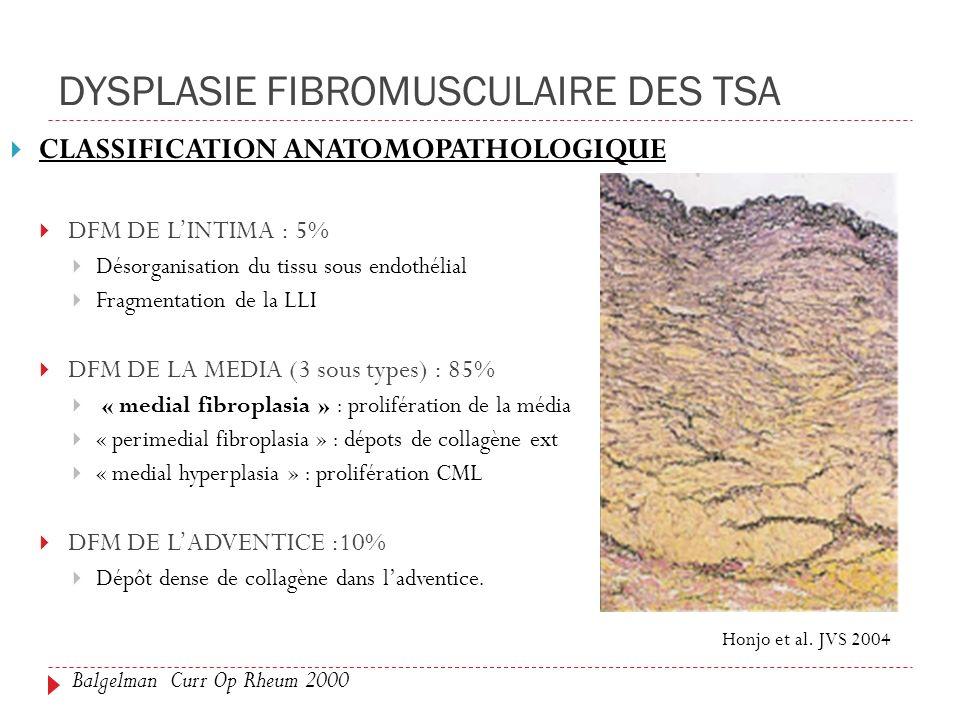 DYSPLASIE FIBROMUSCULAIRE DES TSA CLASSIFICATION ANATOMOPATHOLOGIQUE DFM DE LINTIMA : 5% Désorganisation du tissu sous endothélial Fragmentation de la LLI DFM DE LA MEDIA (3 sous types) : 85% « medial fibroplasia » : prolifération de la média « perimedial fibroplasia » : dépots de collagène ext « medial hyperplasia » : prolifération CML DFM DE LADVENTICE :10% Dépôt dense de collagène dans ladventice.