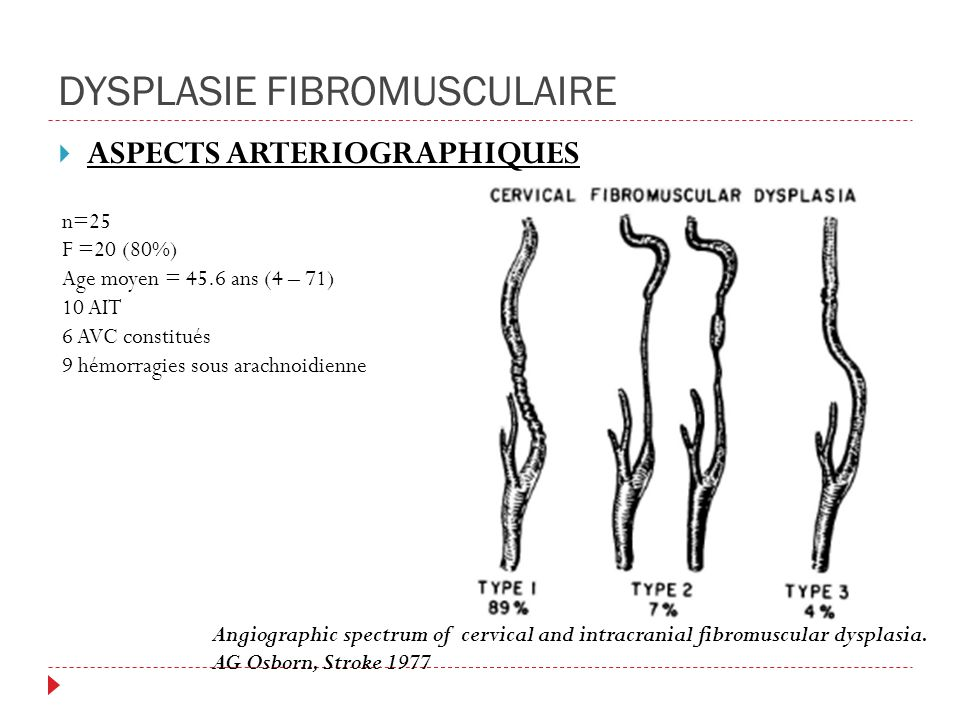 DYSPLASIE FIBROMUSCULAIRE ASPECTS ARTERIOGRAPHIQUES Angiographic spectrum of cervical and intracranial fibromuscular dysplasia.