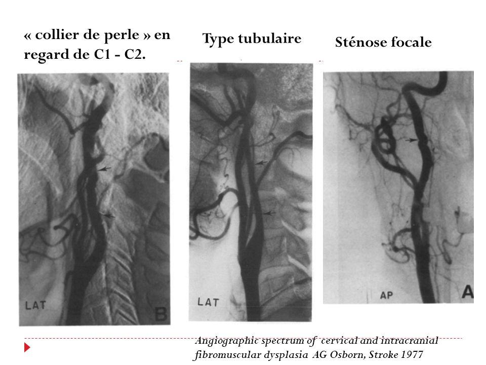 « collier de perle » en regard de C1 - C2. Type tubulaire Sténose focale Angiographic spectrum of cervical and intracranial fibromuscular dysplasia AG