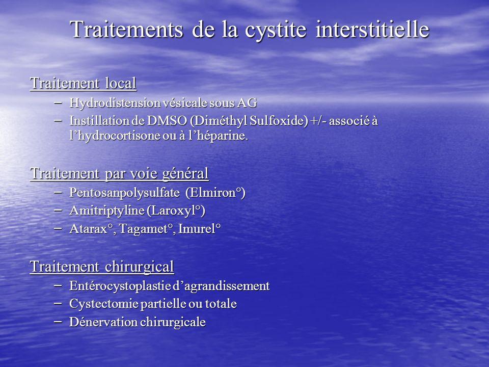 Traitements de la cystite interstitielle Traitement local – Hydrodistension vésicale sous AG – Instillation de DMSO (Diméthyl Sulfoxide) +/- associé à