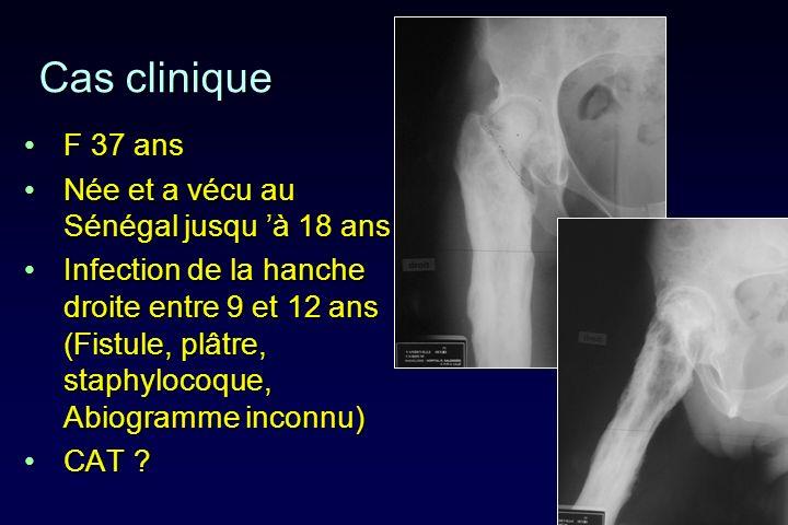 Cas clinique F 37 ansF 37 ans Née et a vécu au Sénégal jusqu à 18 ansNée et a vécu au Sénégal jusqu à 18 ans Infection de la hanche droite entre 9 et