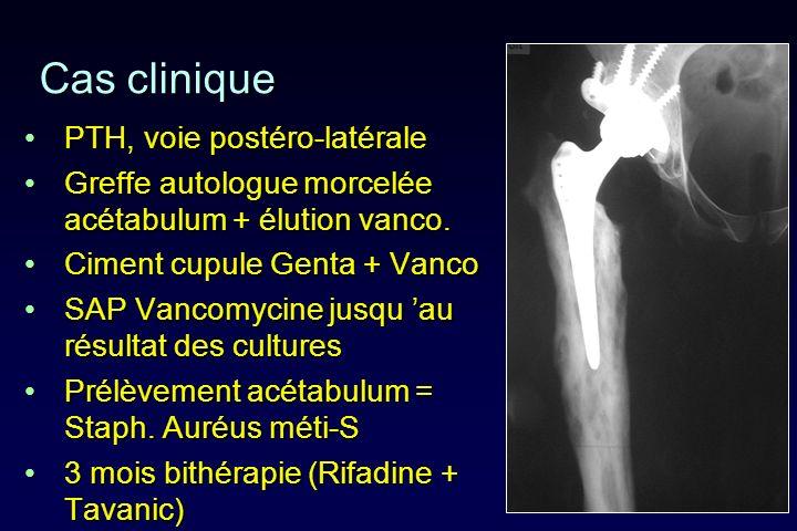 Cas clinique PTH, voie postéro-latéralePTH, voie postéro-latérale Greffe autologue morcelée acétabulum + élution vanco.Greffe autologue morcelée acéta