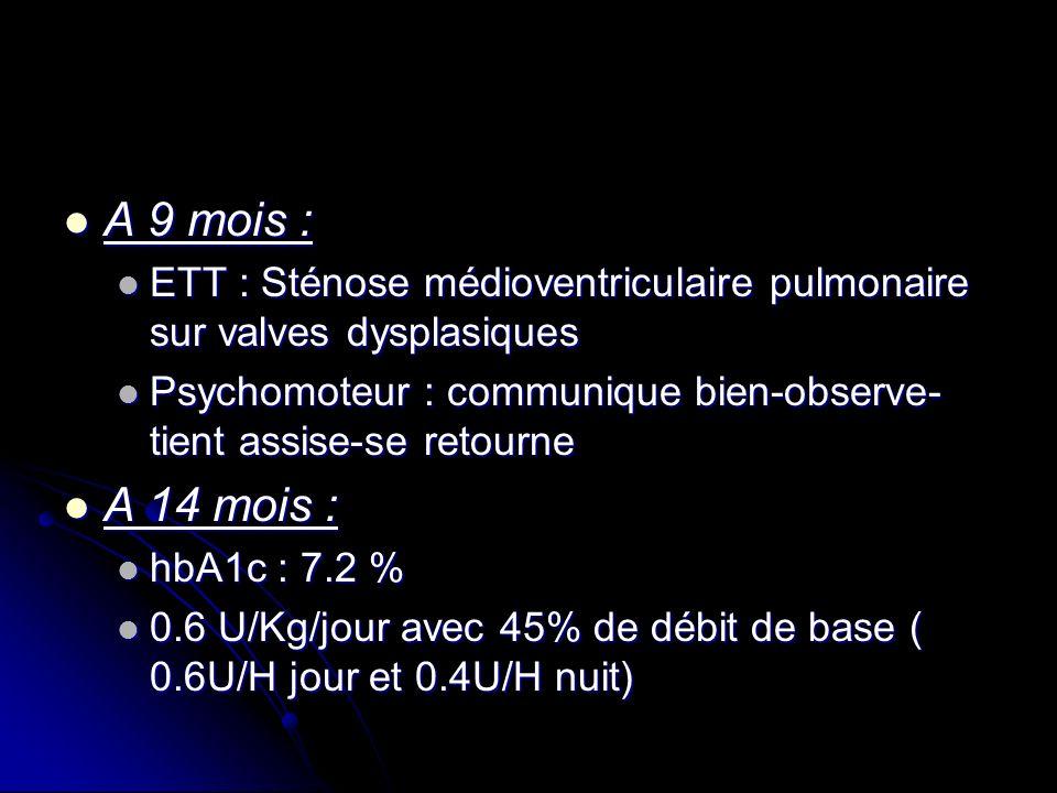 A 9 mois : A 9 mois : ETT : Sténose médioventriculaire pulmonaire sur valves dysplasiques ETT : Sténose médioventriculaire pulmonaire sur valves dyspl