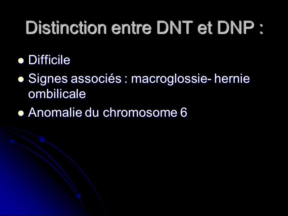 Distinction entre DNT et DNP : Difficile Difficile Signes associés : macroglossie- hernie ombilicale Signes associés : macroglossie- hernie ombilicale
