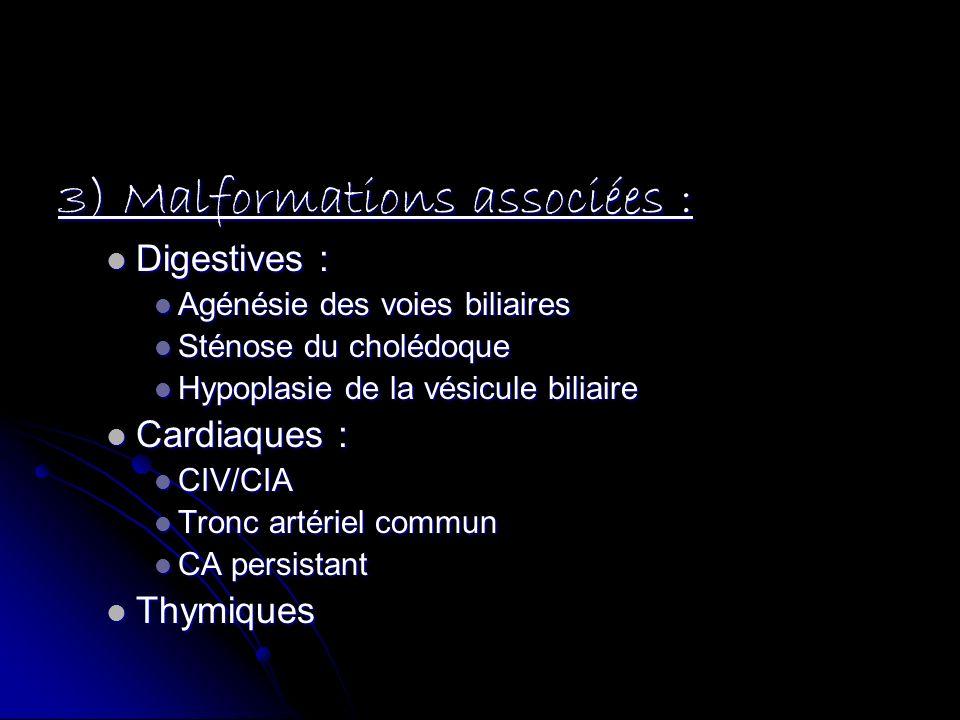 3) Malformations associées : Digestives : Digestives : Agénésie des voies biliaires Agénésie des voies biliaires Sténose du cholédoque Sténose du chol