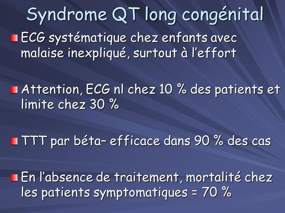 Syndrome QT long congénital 4.1 Clinique –allongement idiopathique de l'espace QTc ; –Syncope provoquée par le stress (émotion, effort), par la prise
