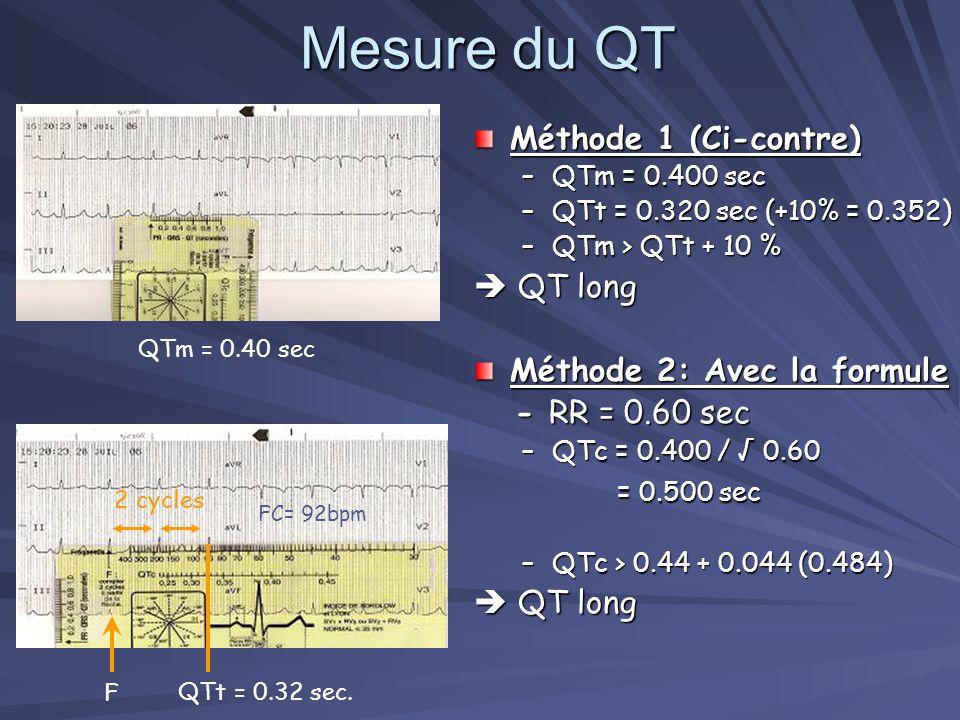 ECG 1. Comment analyser un QT ? 2. Importance de la mesure du QT ? Suspicion de QT long