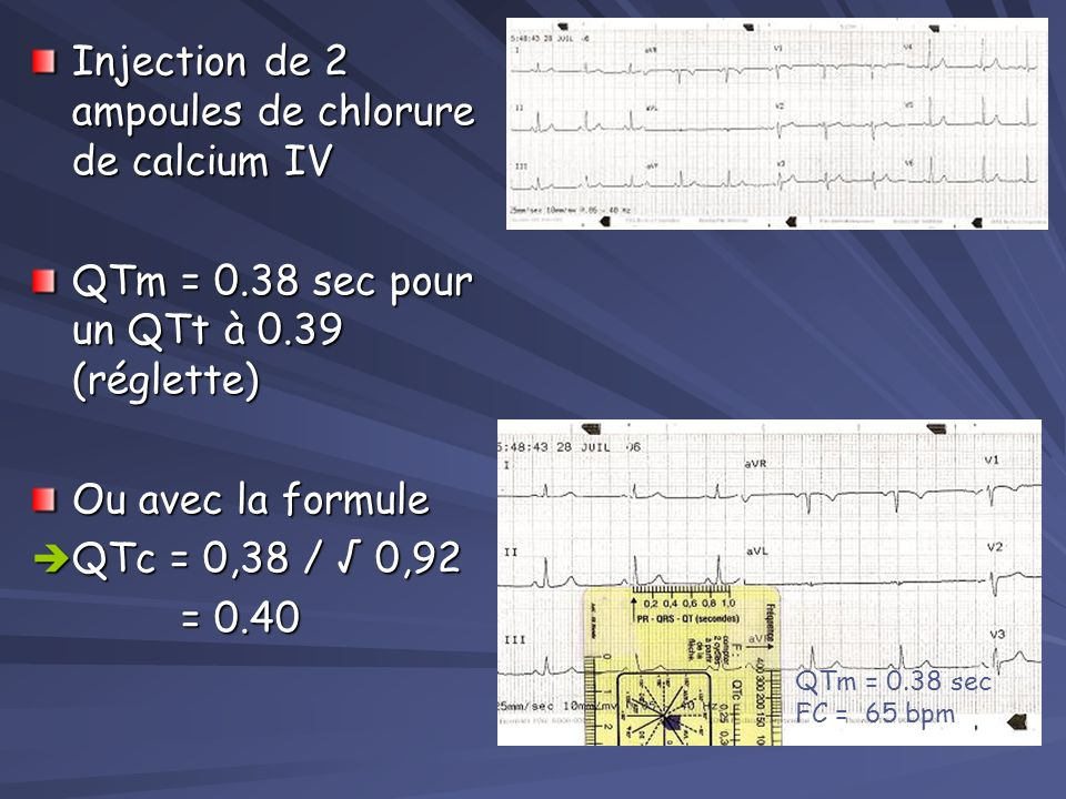 Cas clinique: Étiologies du QT long HYPOCALCEMIE HYPOCALCEMIE Attention en cas de transfusion massive risque dintoxication citratée (due aux produits