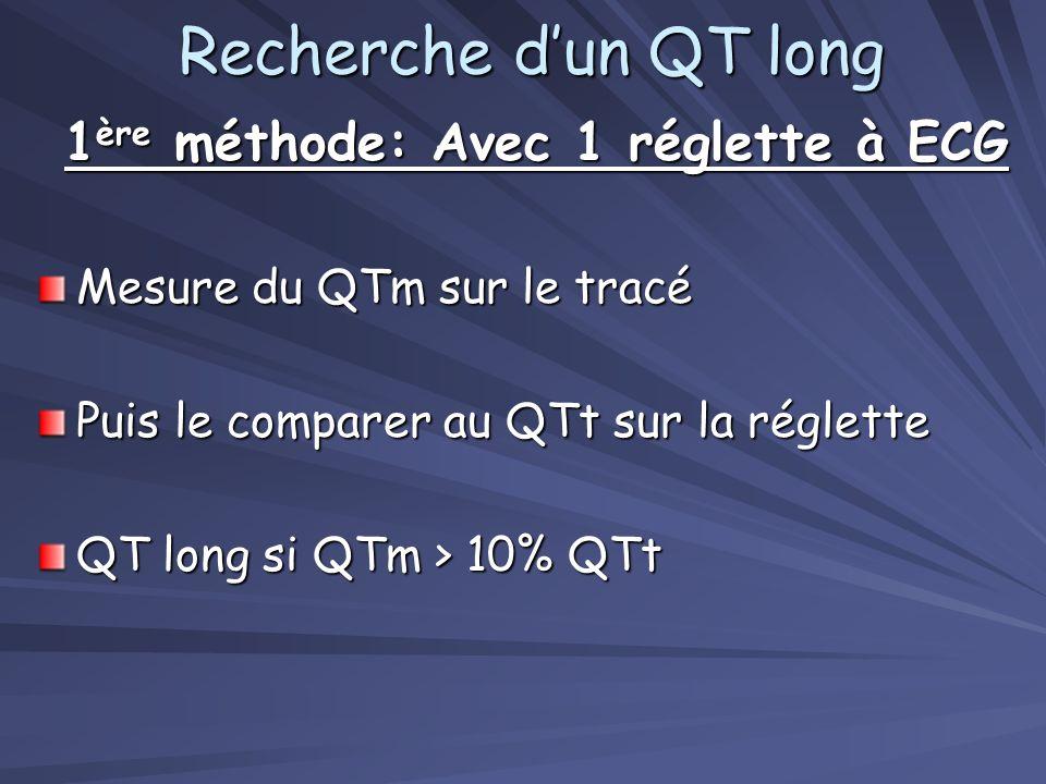 Recherche dun QT long 1 ère méthode: Avec 1 réglette à ECG Mesure du QTm sur le tracé Puis le comparer au QTt sur la réglette QT long si QTm > 10% QTt