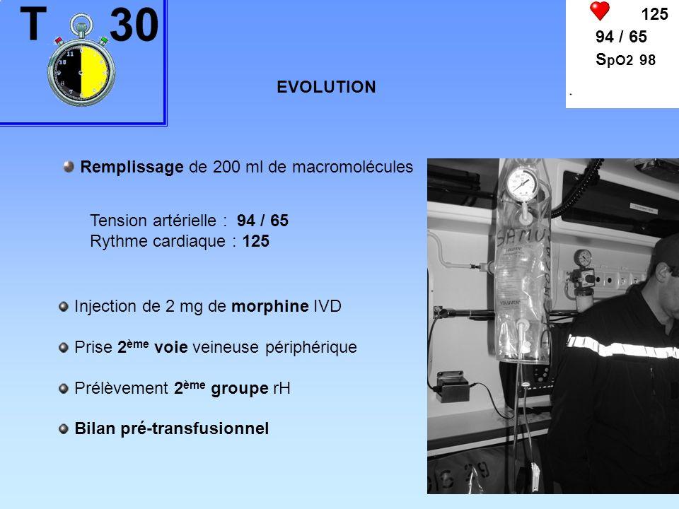 125 94 / 65 S pO2 98 EVOLUTION Remplissage de 200 ml de macromolécules Tension artérielle : 94 / 65 Rythme cardiaque : 125 Injection de 2 mg de morphi