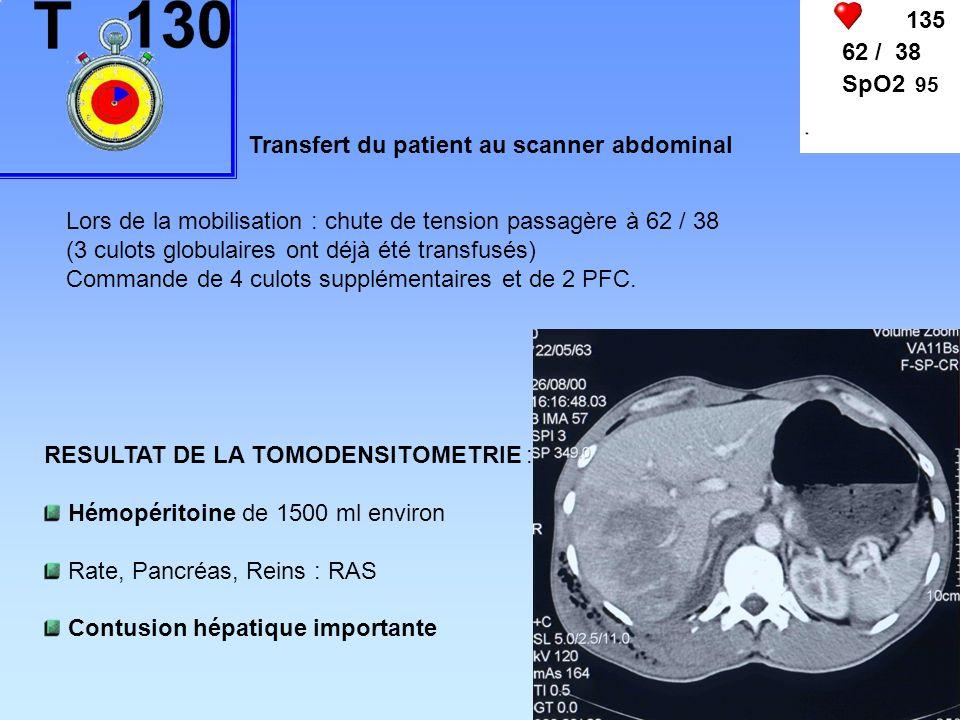 135 62 / 38 SpO2 95 Transfert du patient au scanner abdominal Lors de la mobilisation : chute de tension passagère à 62 / 38 (3 culots globulaires ont