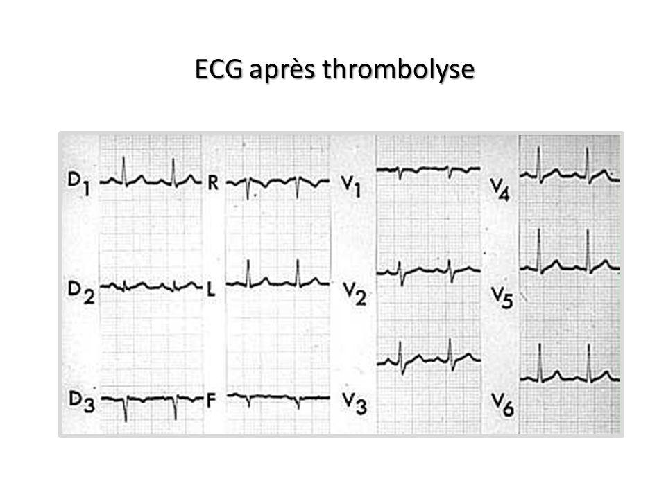ECG après thrombolyse