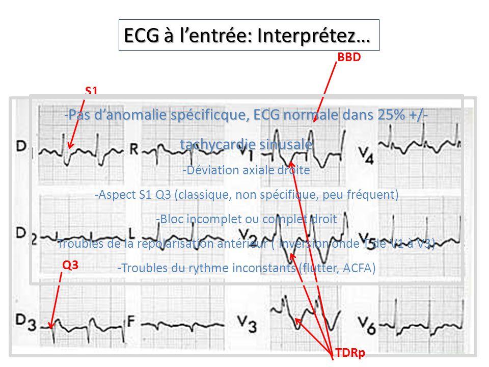 ECG à lentrée: Interprétez… BBD S1 Q3 TDRp Pas danomalie spécificque, ECG normale dans 25% +/- tachycardie sinusale - Pas danomalie spécificque, ECG n