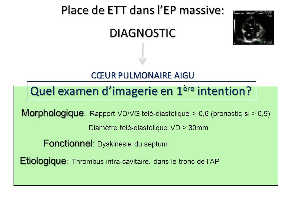 Place de ETT dans lEP massive: DIAGNOSTIC Morphologique Morphologique : Rapport VD/VG télé-diastolique > 0,6 (pronostic si > 0,9) Diamètre télé-diasto