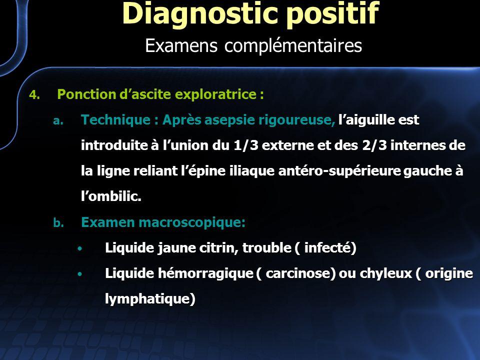 4. Ponction dascite exploratrice : laiguille est introduite à lunion du 1/3 externe et des 2/3 internes de la ligne reliant lépine iliaque antéro-supé
