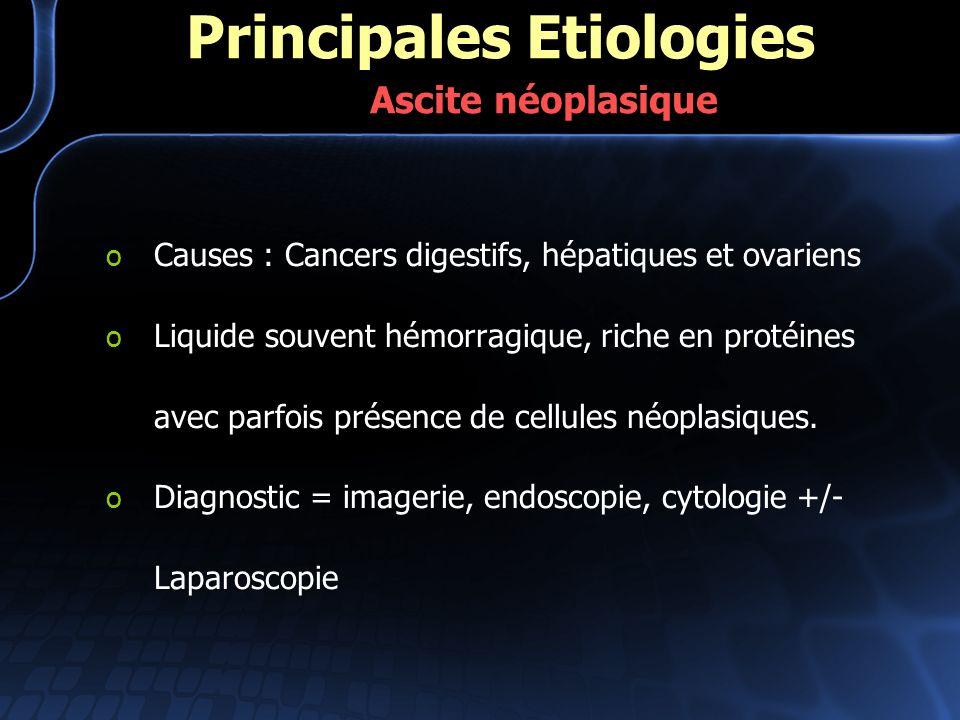 o Causes : Cancers digestifs, hépatiques et ovariens o Liquide souvent hémorragique, riche en protéines avec parfois présence de cellules néoplasiques
