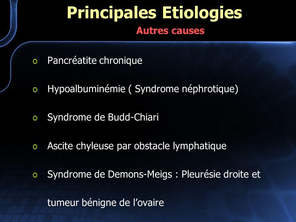 o Pancréatite chronique o Hypoalbuminémie ( Syndrome néphrotique) o Syndrome de Budd-Chiari o Ascite chyleuse par obstacle lymphatique o Syndrome de D