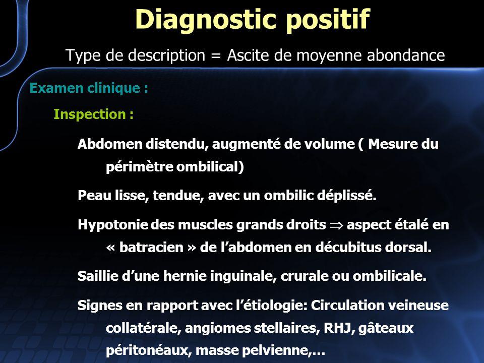 Examen clinique : Inspection : Abdomen distendu, augmenté de volume ( Mesure du périmètre ombilical) Peau lisse, tendue, avec un ombilic déplissé. Hyp