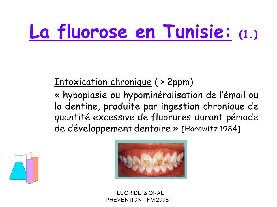 FLUORIDE & ORAL PREVENTION - FM 2005 - La fluorose en Tunisie: (1.) Intoxication chronique ( > 2ppm) « hypoplasie ou hypominéralisation de lémail ou l