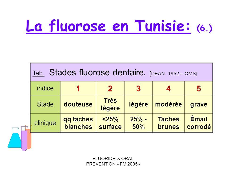 FLUORIDE & ORAL PREVENTION - FM 2005 - La fluorose en Tunisie: (6.) Tab. Stades fluorose dentaire. [ DEAN 1952 – OMS] indice12345 Stadedouteuse Très l