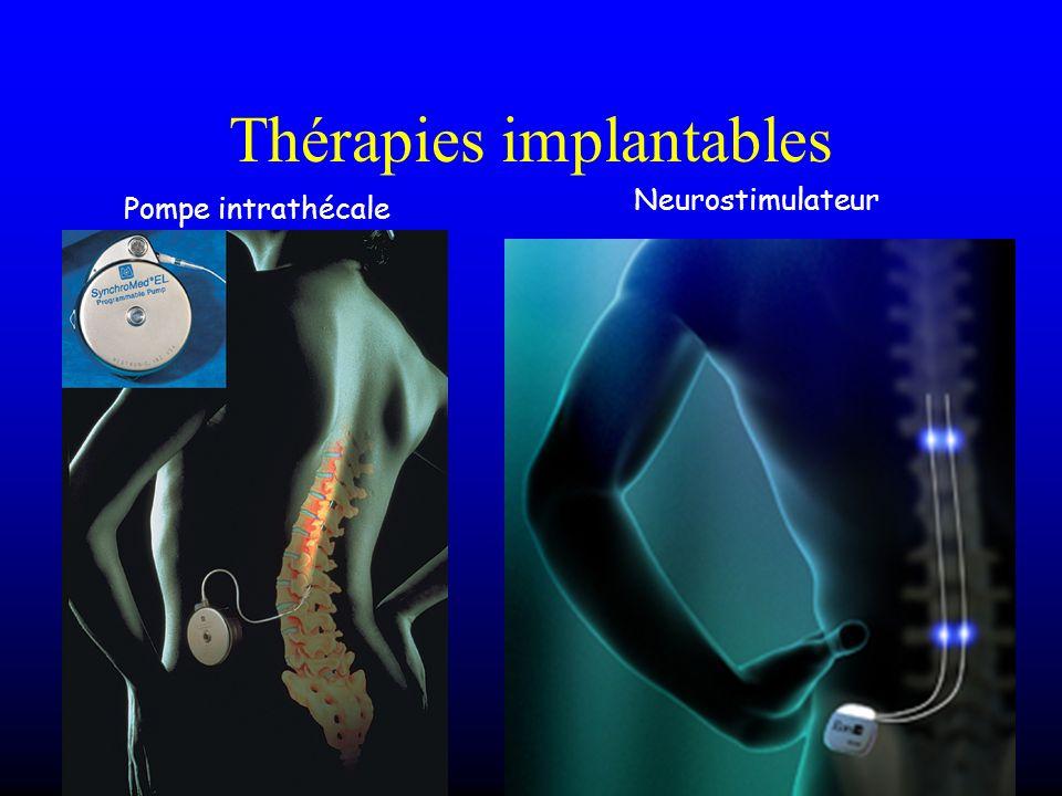 Thérapies implantables Pompe intrathécale Neurostimulateur