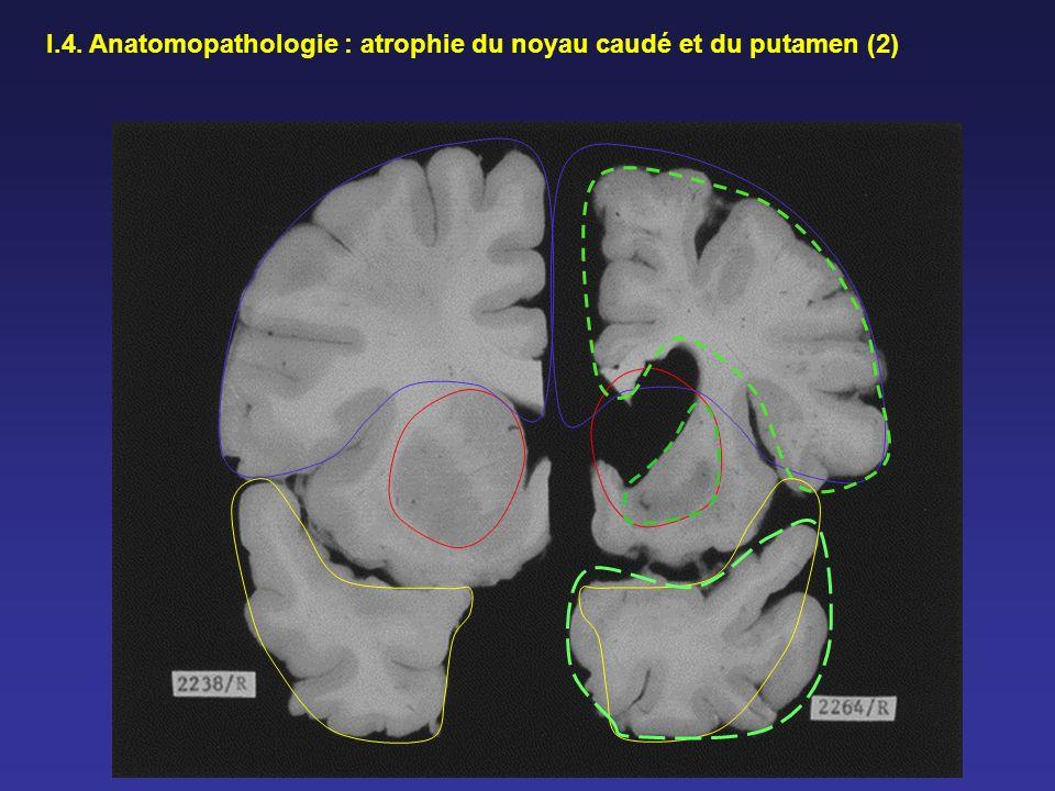 I.4. Anatomopathologie : atrophie du noyau caudé et du putamen (2)