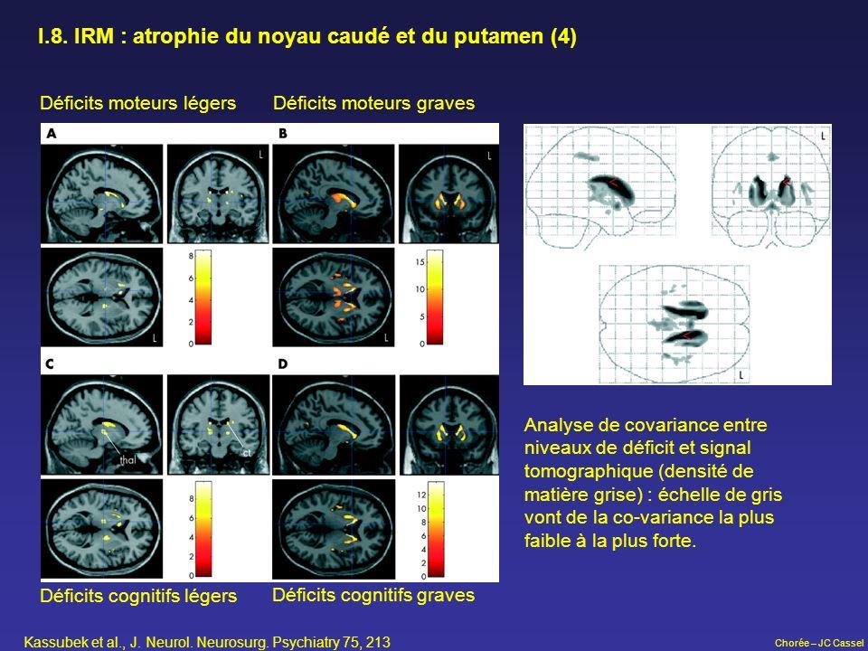 Chorée – JC Cassel Déficits moteurs légers Déficits moteurs graves Déficits cognitifs légers Déficits cognitifs graves I.8. IRM : atrophie du noyau ca