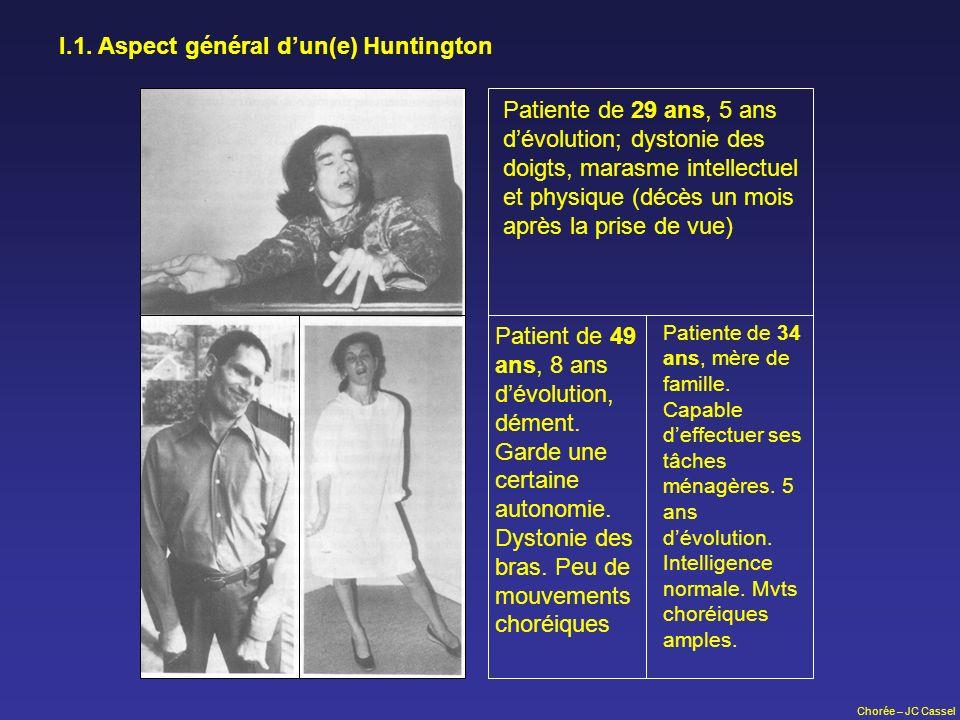 Chorée – JC Cassel I.1. Aspect général dun(e) Huntington Patiente de 29 ans, 5 ans dévolution; dystonie des doigts, marasme intellectuel et physique (