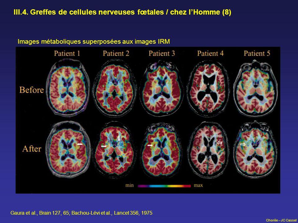 Chorée – JC Cassel III.4. Greffes de cellules nerveuses fœtales / chez lHomme (8) Images métaboliques superposées aux images IRM Gaura et al., Brain 1