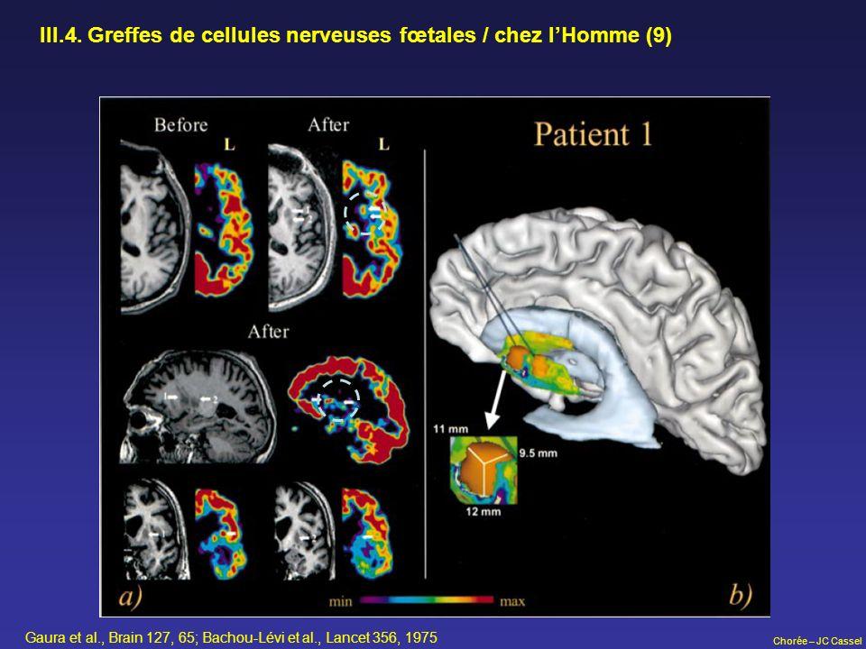 Chorée – JC Cassel III.4. Greffes de cellules nerveuses fœtales / chez lHomme (9) Gaura et al., Brain 127, 65; Bachou-Lévi et al., Lancet 356, 1975
