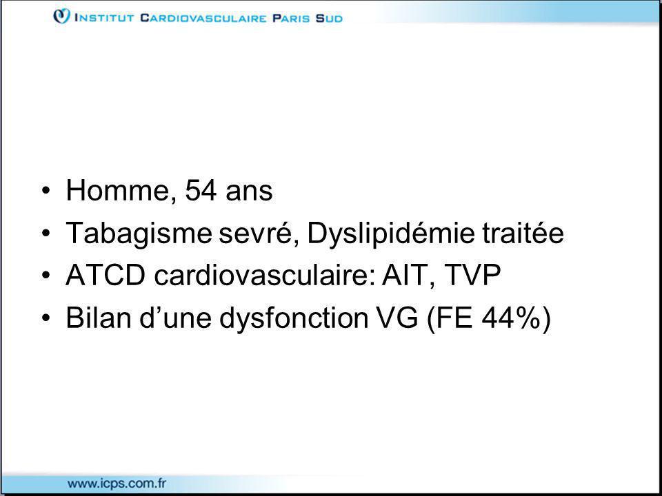 Homme, 54 ans Tabagisme sevré, Dyslipidémie traitée ATCD cardiovasculaire: AIT, TVP Bilan dune dysfonction VG (FE 44%)