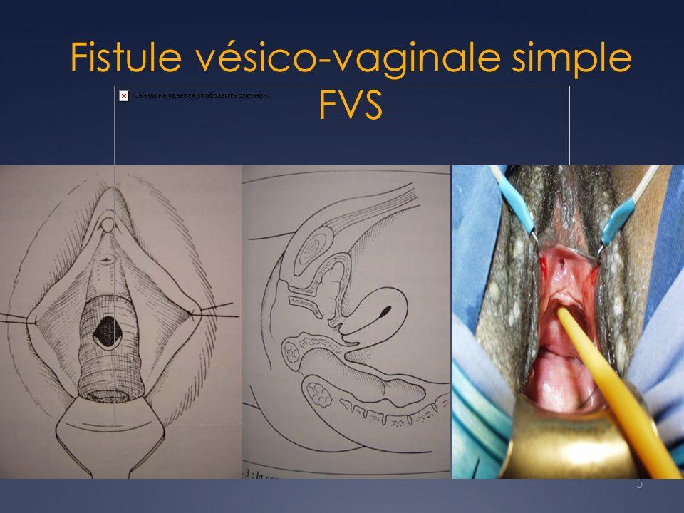 5 Fistule vésico-vaginale simple FVS