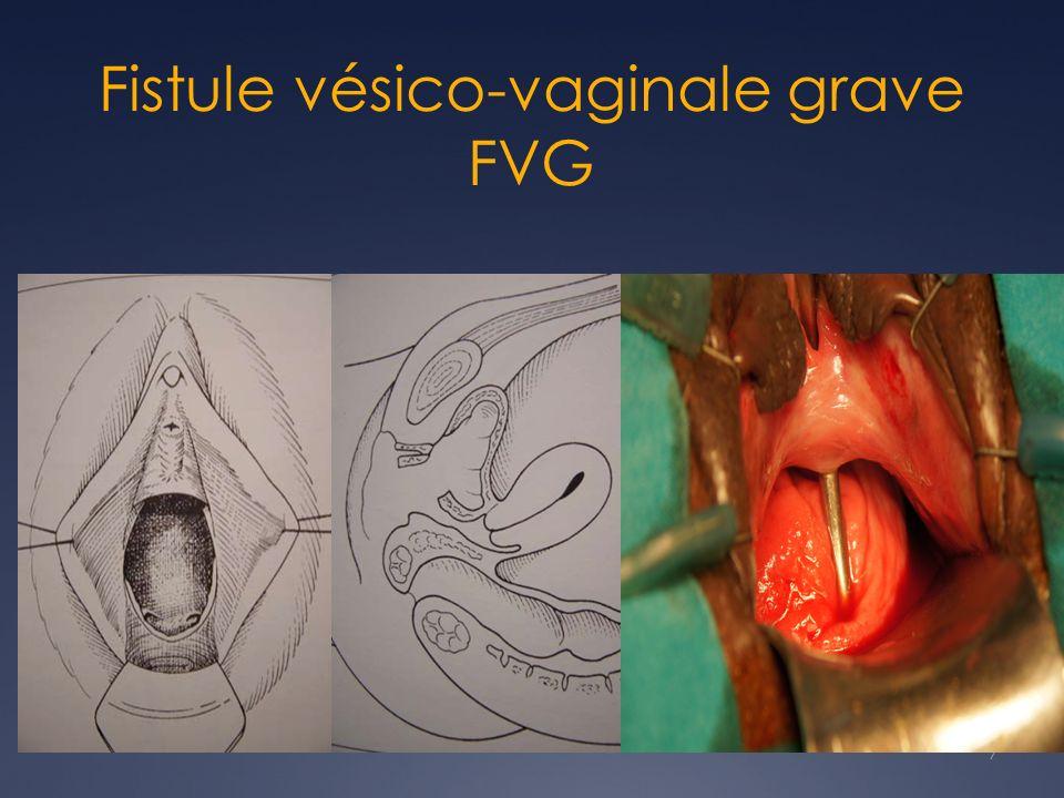 7 Fistule vésico-vaginale grave FVG