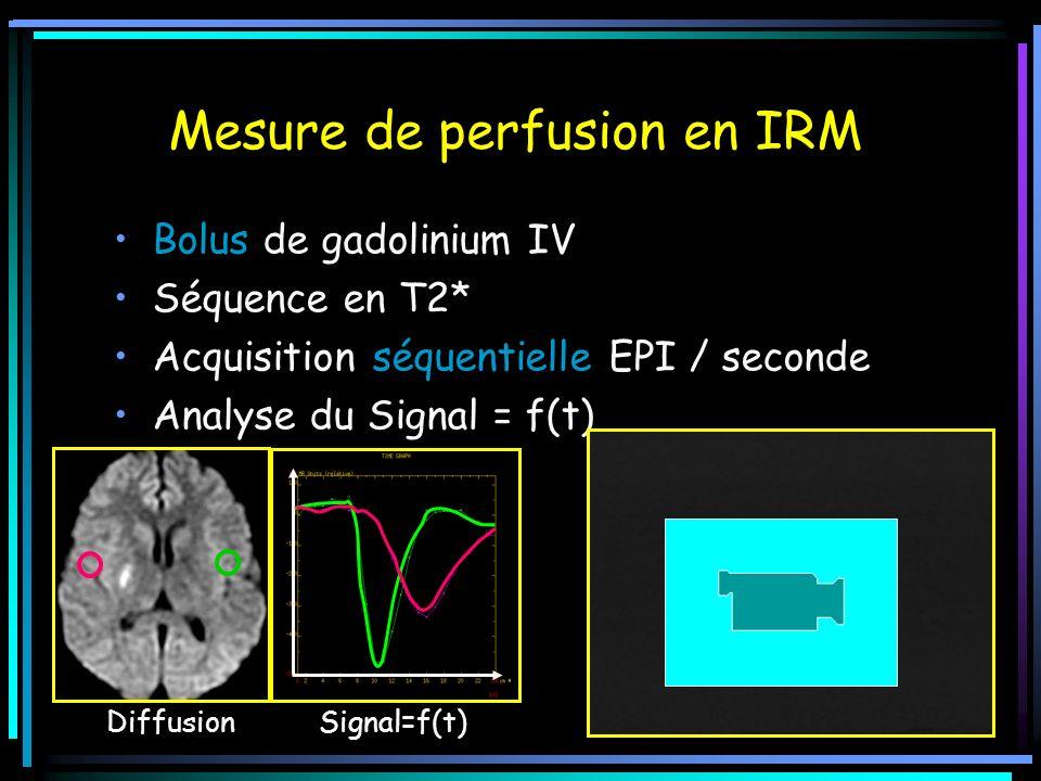 Mesure de perfusion en IRM Bolus de gadolinium IV Séquence en T2* Acquisition séquentielle EPI / seconde Analyse du Signal = f(t) Diffusion Signal=f(t