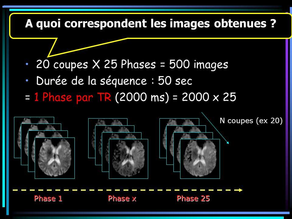 20 coupes X 25 Phases = 500 images Durée de la séquence : 50 sec = 1 Phase par TR (2000 ms) = 2000 x 25 10 s A quoi correspondent les images obtenues