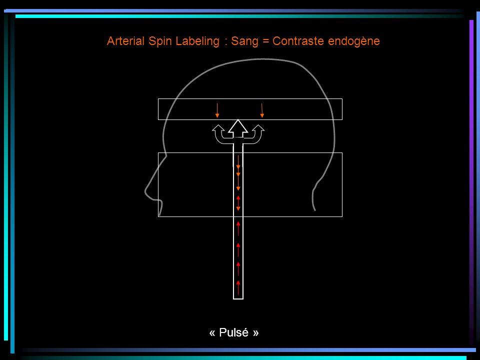 Arterial Spin Labeling : Sang = Contraste endogène « Pulsé »